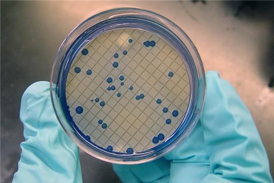 О выявлении бактерий группы кишечной палочки